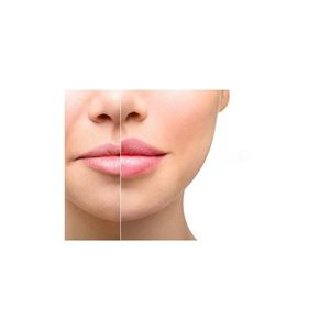 Tratamiento facial Hyaluron Pen